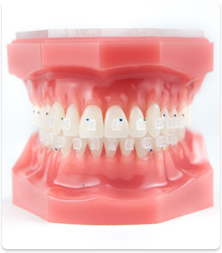 clear braces in reading pa