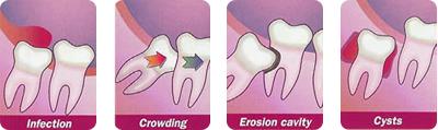 Problems with Wisdom Teeth