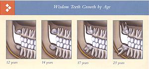 Wisdom teeth eruption by age