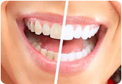 whitening your teeth in bethlehem pa