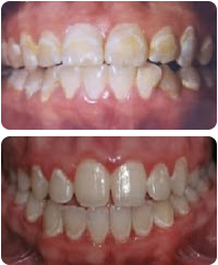 Common Causes Of White Spots After Wearing Braces Spark Orthodontics