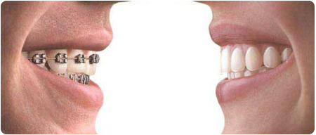 Award Winning Orthodontist In Reading PA Shares The Difference Between Braces and Invisalign