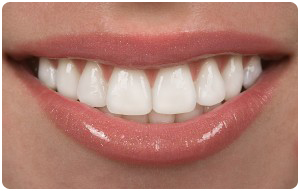 Invisalign Teen Benefit From These Clear Braces Near Bethlehem