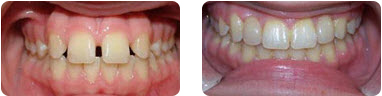 Dont Rush Mother Nature By Your Favorite York PA Orthodontist