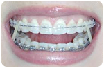 Five Tips For Cleaning Your Braces This Summer Near Pottsville P A