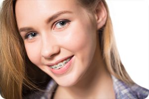 northampton pa orthodontist do braces cause white spots
