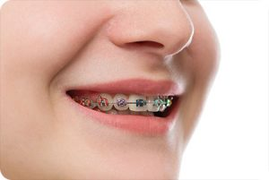bethlehem pa orthodontist how much do braces cost