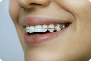 schnecksville pa orthodontist retainer care