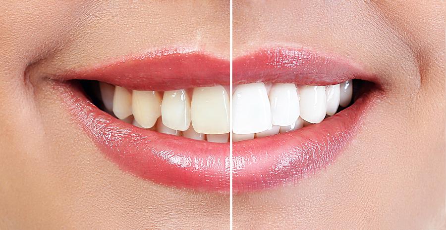 bloomsburg orthodontists