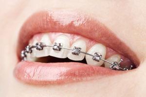 lancaster orthodontist