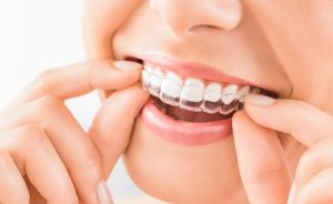 orthodontist-in-lancaster-pa-invisalign-for-children