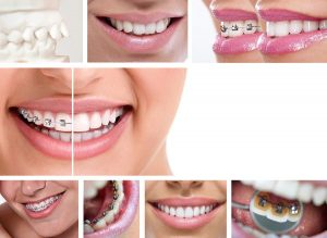orthodontist quakertown pa
