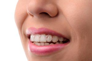orthodontist reading pa